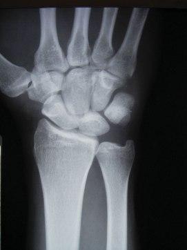 Sprained Thumb X Ray